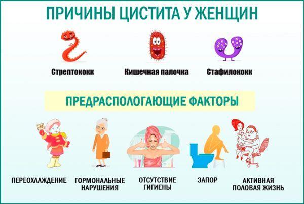 Как лечить цистит в домашних условиях быстро народные средства 88